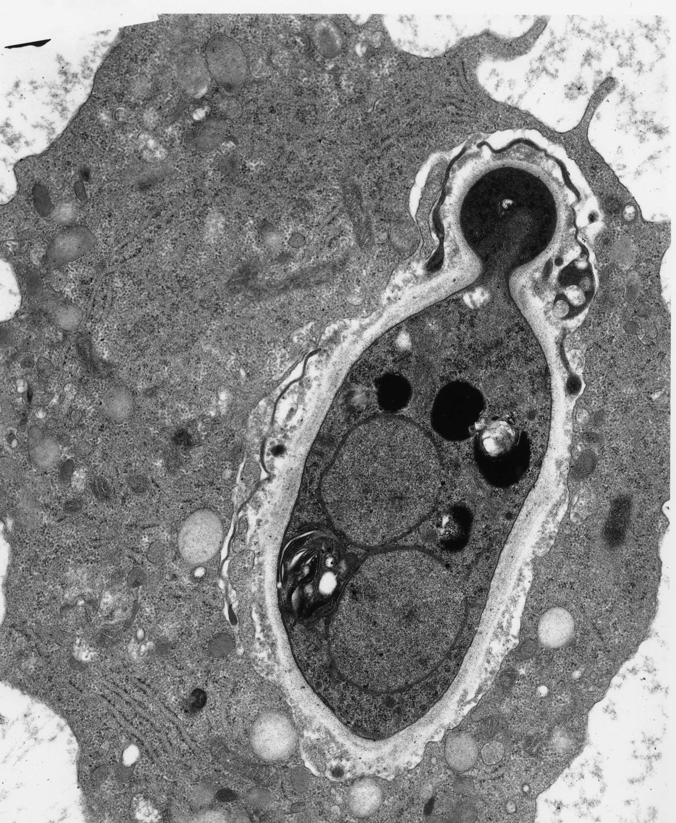 Examples Of Diagnostic Transmission Electron Microscopy