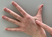 Image of a Veteran practicing self-care through acupressure, by pressing one finger into the back of opposite hand in the soft spot between thumb and pointer finger.